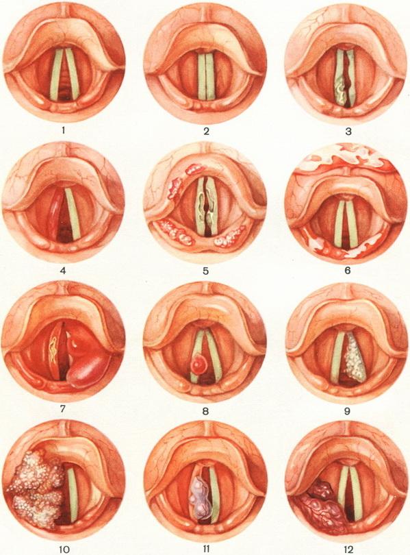 Гипертрофия малой губы у девочки подростка 68