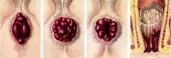 Лечение эндометриоза по сунне