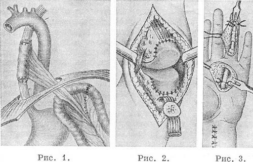 Пластические операции на мочеточниках