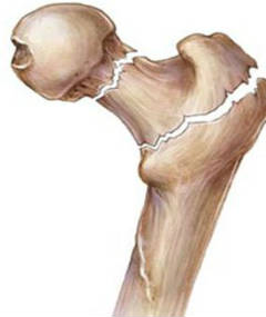 екзостозна хвороба кісток фото